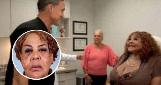 """""""Cementová tvář"""": Falešný lékař vyrobil pro ženu plastiku obličeje pomocí """"tajné směsi"""". Jak teď vypadá žena"""