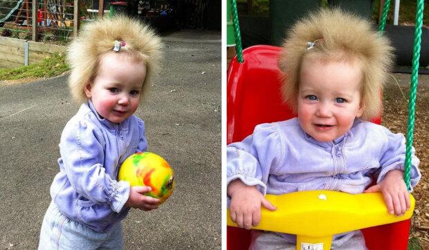 Jak vypadá holka-pampeliška se vzácnou anomálií vlasů: Je jí už 10 let