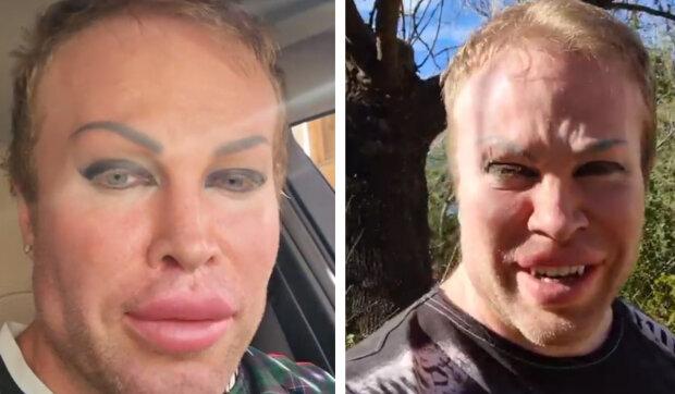 """""""Skoro jako DiCaprio"""": jak vypadal bloger před 15 plastickými operacemi"""
