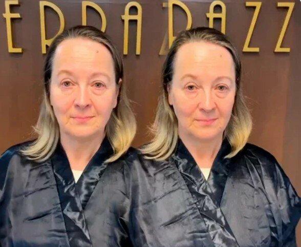 Žena s tenkými a řídkými vlasy se obrátila na salon. Stylist změnil barvu a účes