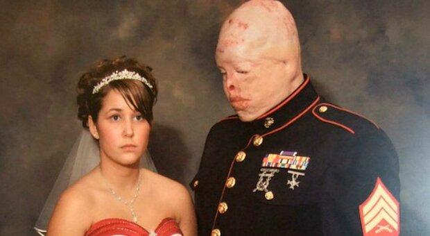 """Příběh lásky, kterou přerušil nepřítel"""": Američanka se provdala za postiženého snoubence"""